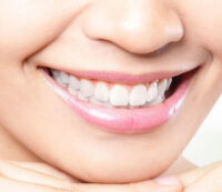 After Deep Teeth Whitening
