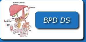 BILIOPANCREATIC DIVERSION WITH DUODENAL SWITCH(BPD DS)