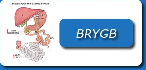 LAPAROSCOPIC BANDED ROUX EN Y GASTRIC BYPASS (BRYGB)