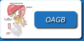 ONE ANASTOMOSIS GASTRIC BYPASS(OAGB)