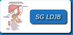 SLEEVE GASTRECTOMY WITH LOOP DUODENOJEJUNAL BYPASS (SG LDJB)
