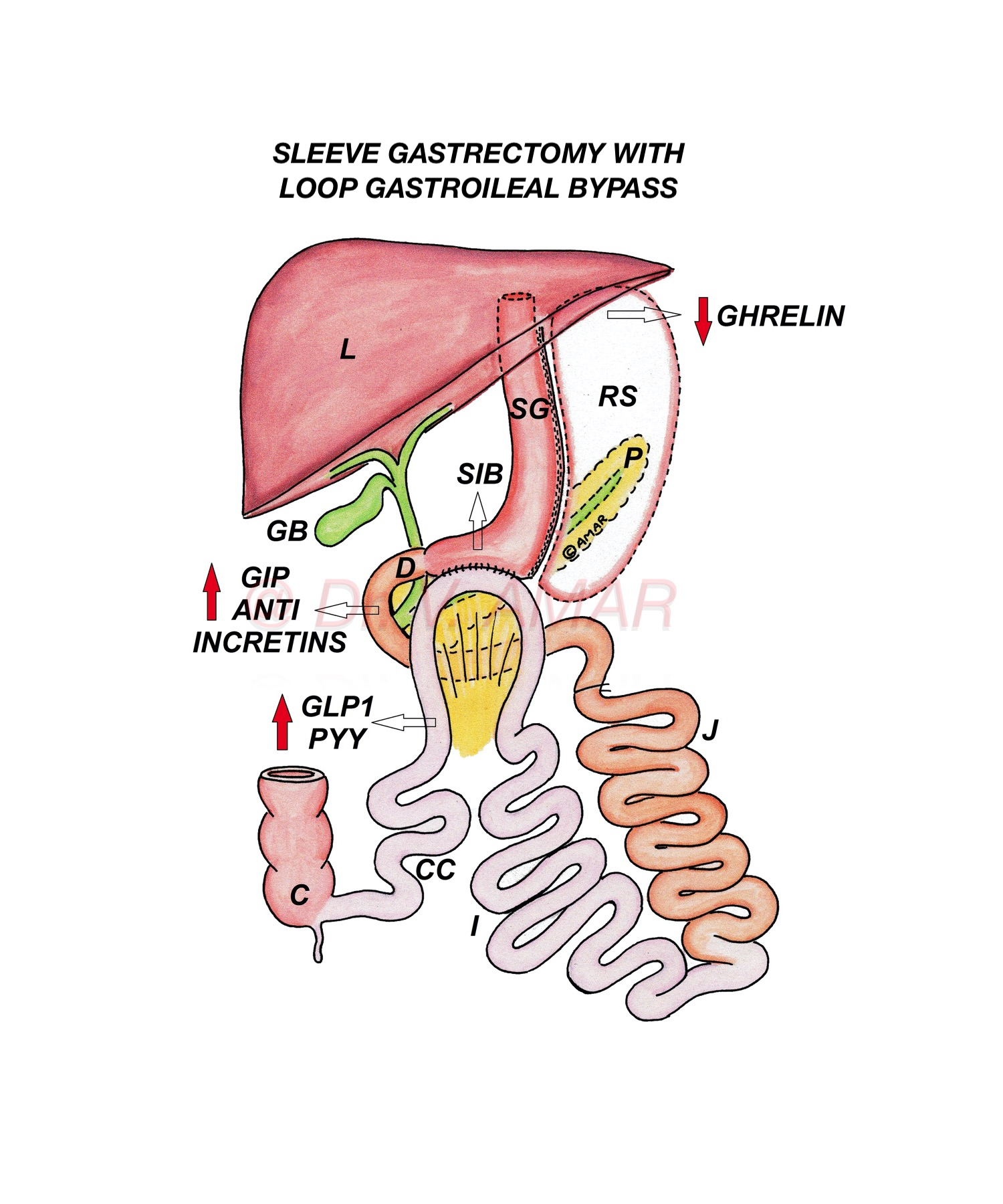 SLEEVE GASTRECTOMY WITH LOOP GASTROILEAL BYPASS(SG LGIB)